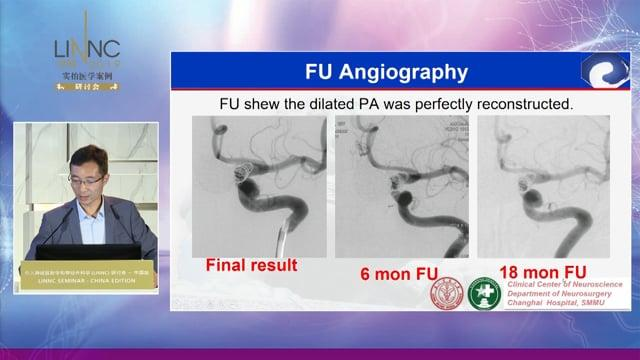 Flow diverters vs stents and coils in the treatment of side